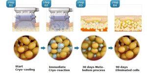 مراحل کرایولیپولیز